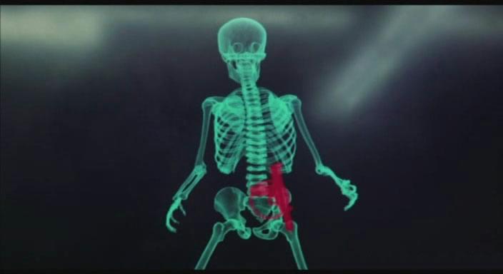 Skelettscanner im Film Total Recall